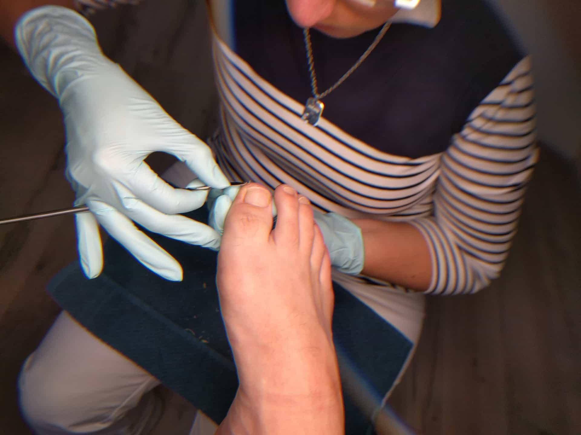 Diabetisches Fußsyndrom – Gesundheit für diabetische Füße